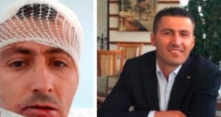 Sot është arrestuar njëri nga sulmuesit e Kryeinspektorit të Punës për rajonin e Mitrovicës, Nexhat Fazliu