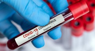 Në 24 orët e fundit janë shëruar 142 pacientë kurse janë konfimuar 48 raste pozitive të reja me virusin korona