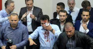LSDM-ja e Zoran Zaev-it ka bërë të ditur se janë lënduar në Kuvend 10 deri në 15 deputetë të kësaj partie